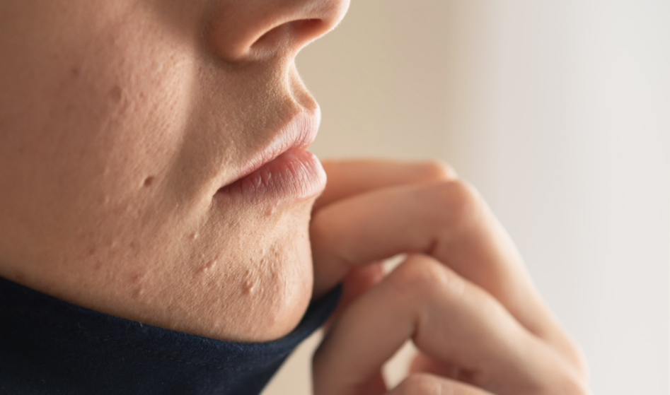 How To Treat Your Acne Scars Effectively