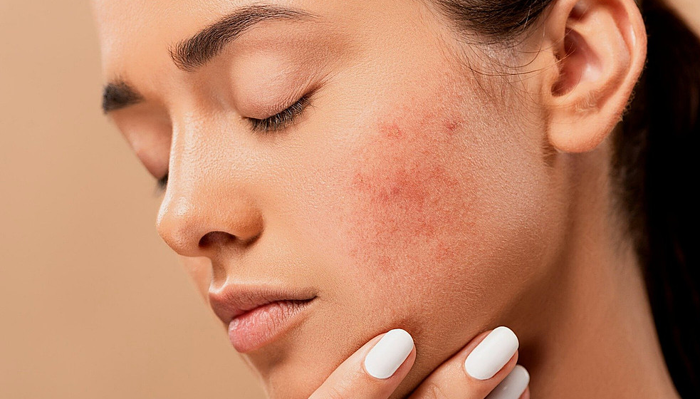 Which Skincare Product Should I Choose?